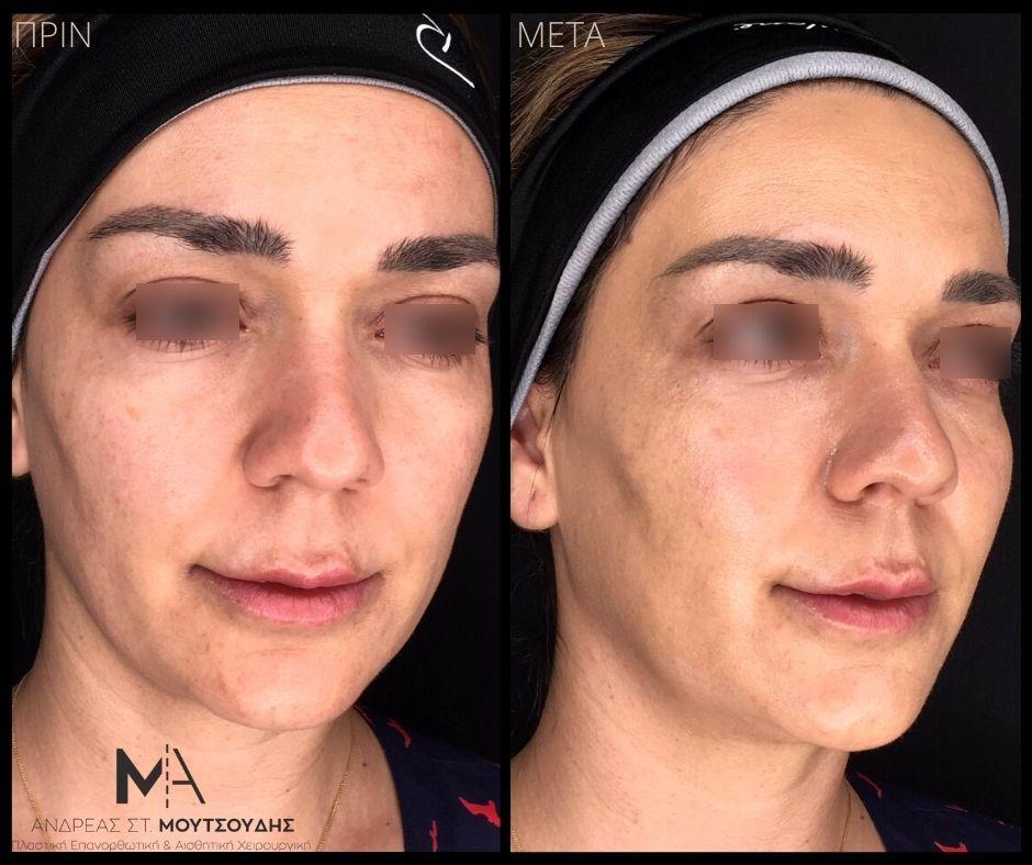 Υαλουρονικό οξύ στα μάτια - Πριν & Μετά