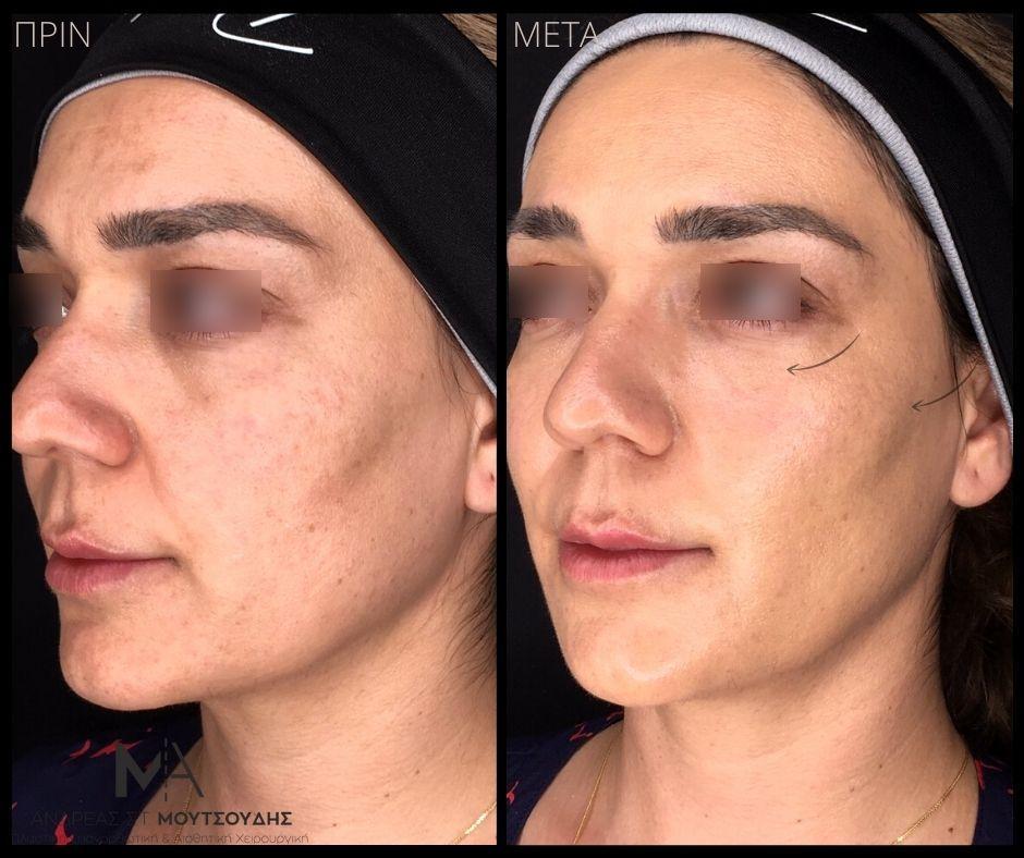 Υαλουρονικό οξύ στα ζυγωματικά - Πριν & Μετά
