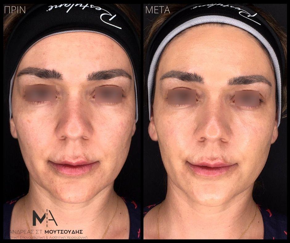 Υαλουρονικό οξύ στο πρόσωπο - Πριν & Μετά