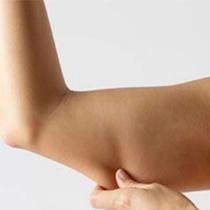 Βραχιονοπλαστική – Επεμβατική Αισθητική Χειρουργική