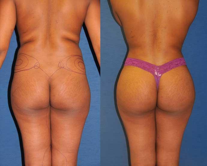 brazilian-butt-lifting