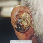 Καρκίνωμα σε αριστερό αυτί - Πριν