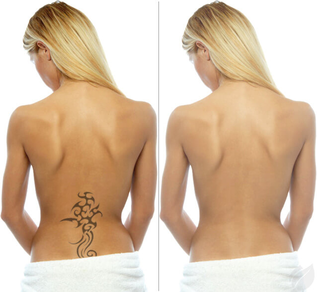 αφαιρεση τατουαζ - tattoo removal