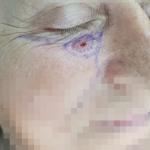 Βασικοκυτταρικό Καρκίνωμα Κάτω Βλεφάρου - πριν