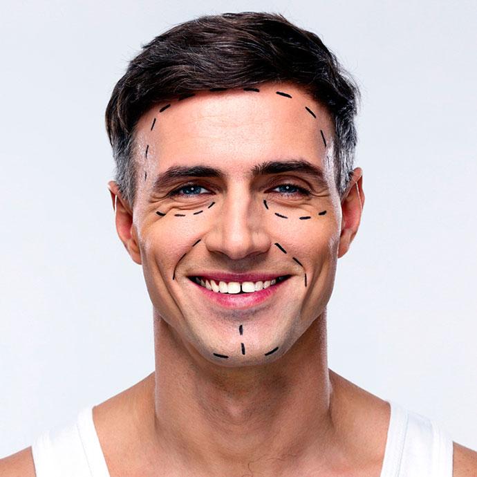 Βλεφαροπλαστική – Αισθητική για Άνδρες