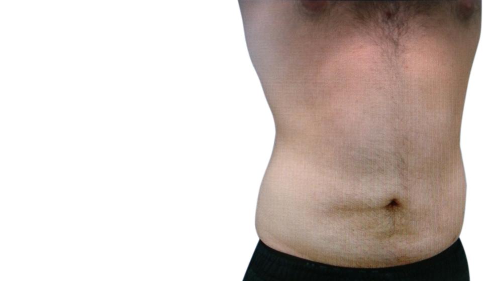 Κοιλιοπλαστική – Επεμβατική Αισθητική Για Άνδρες