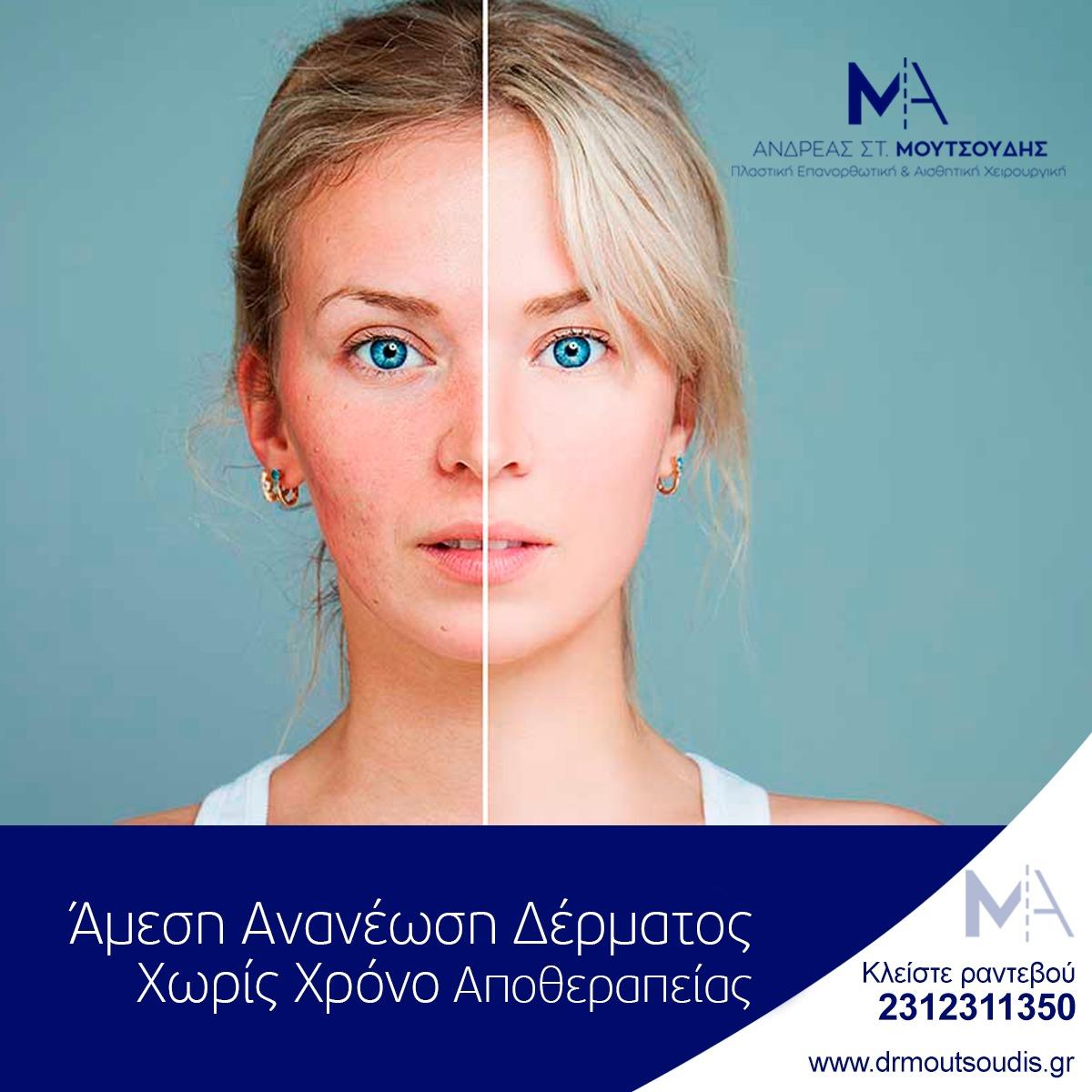 Άμεση Ανανέωση Δέρματος Χωρίς Χρόνο Αποθεραπείας
