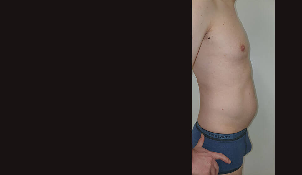 After-Λιποαναρρόφηση σε Άνδρα