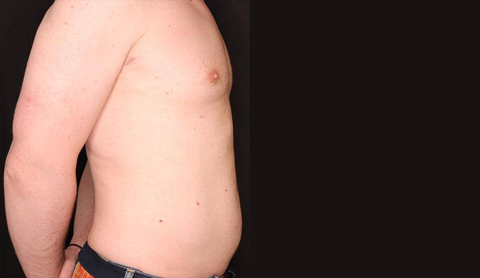 Before-Λιποαναρρόφηση σε Άνδρα