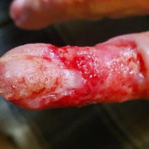 Βασικοκυτταρικό καρκίνωμα μικρού δαχτύλου - Πριν - Εικ.2