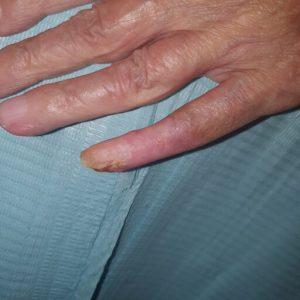 Βασικοκυτταρικό καρκίνωμα μικρού δαχτύλου - Μετά - Εικ.2