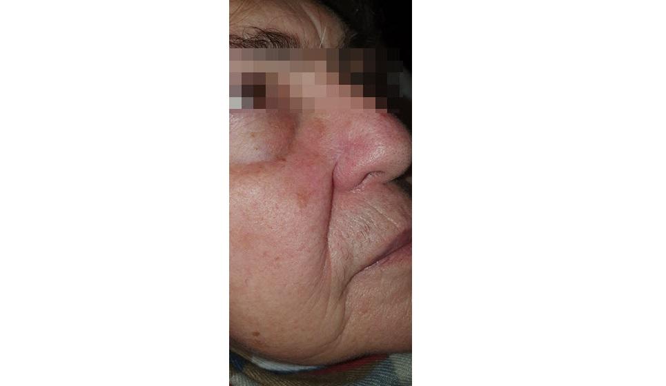 After-Οζώδες βλαστοκυτταρικό καρκίνωμα ρινός