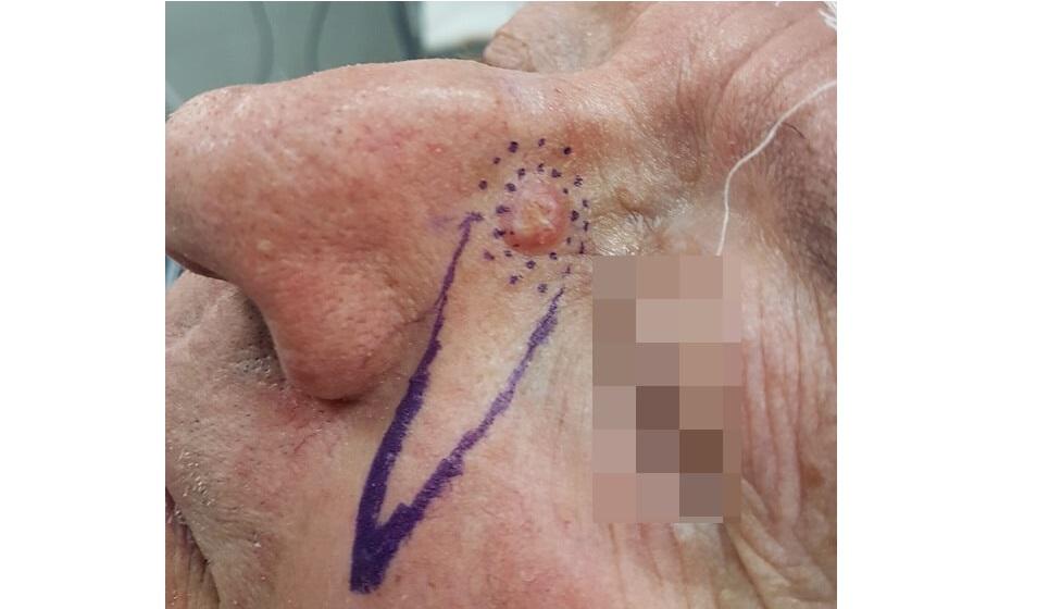 Before-Βασικοκυτταρικό καρκίνωμα ρινός